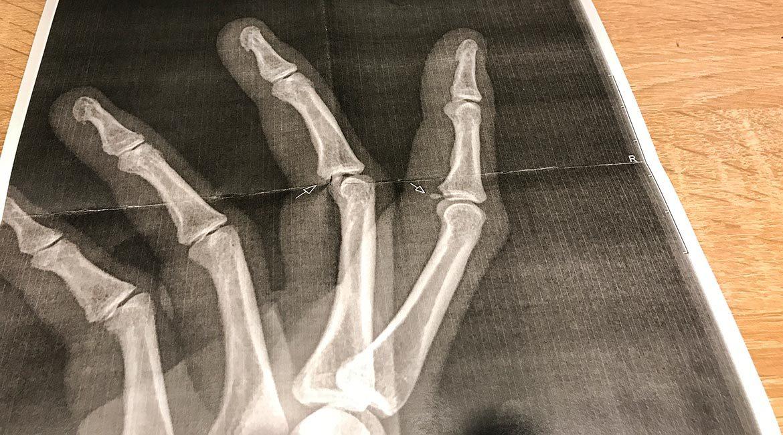 Hand scanning - 2 breaches